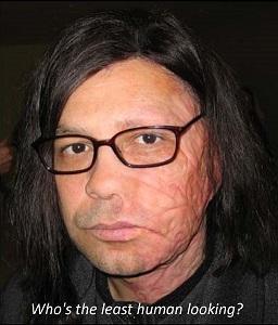 Celebrities Disfigured